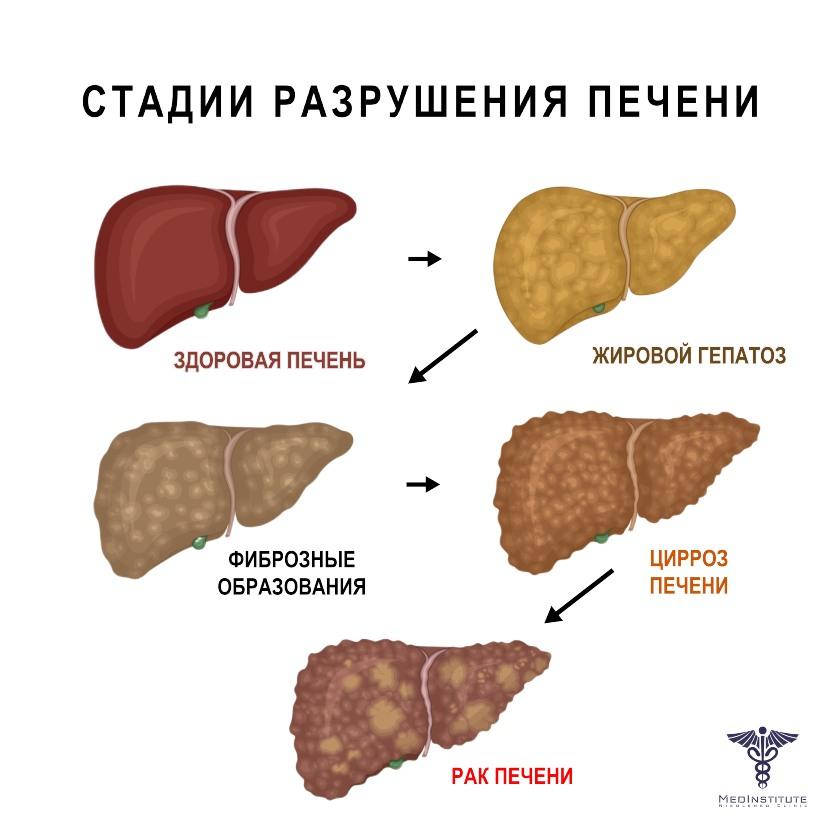 stadii razrushenia pecheni-nikolenko-clinic-cyprus